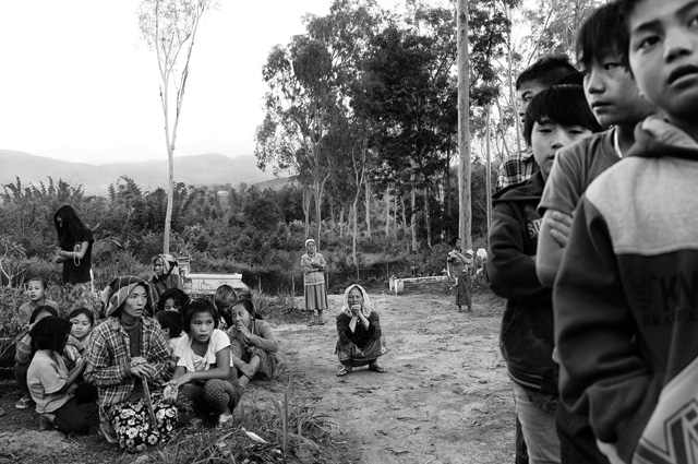 Naung Kan, leprosy, myanmar