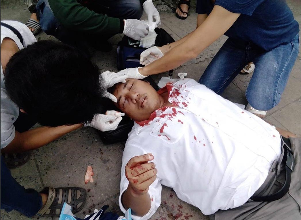 Thai pro-democracy activist Ja New was beaten by masked thugs last week.